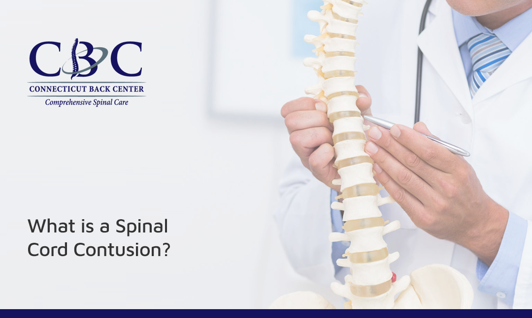 What is a Spinal Cord Contusion?